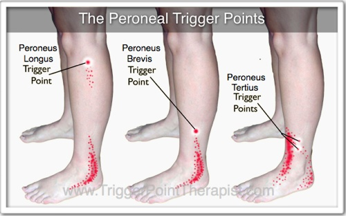 peroneal-trigger-points