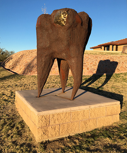 Tooth sculpture in Oracle